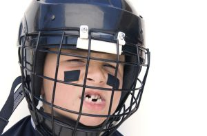 Boy in helmet with missing teeth - Facial Injuries Pinole, CA