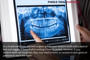 Wisdom Teeth Extraction Pinole, CA